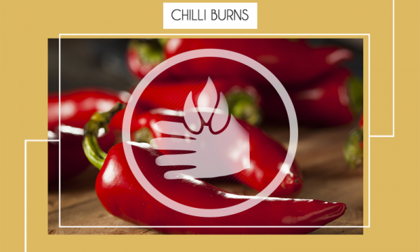 Chilli Burns